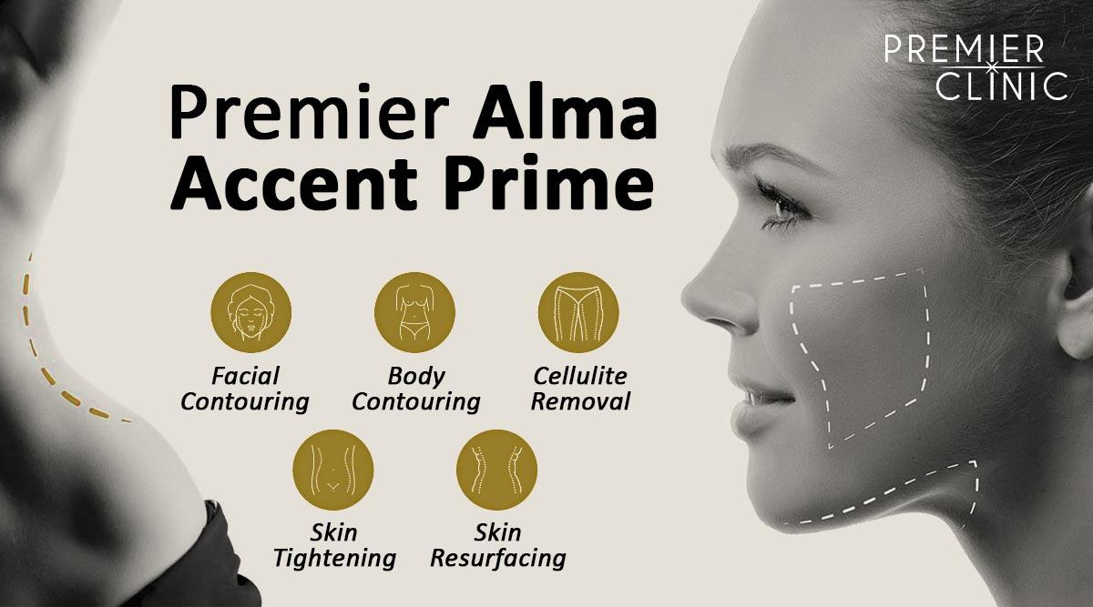Alma Accent Prime