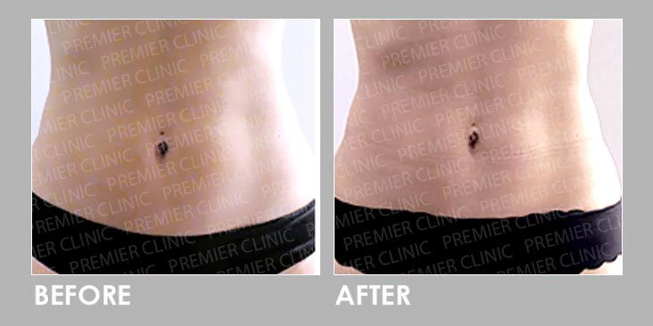 Premier Trusculpt - Muscle Stimulator Therapy