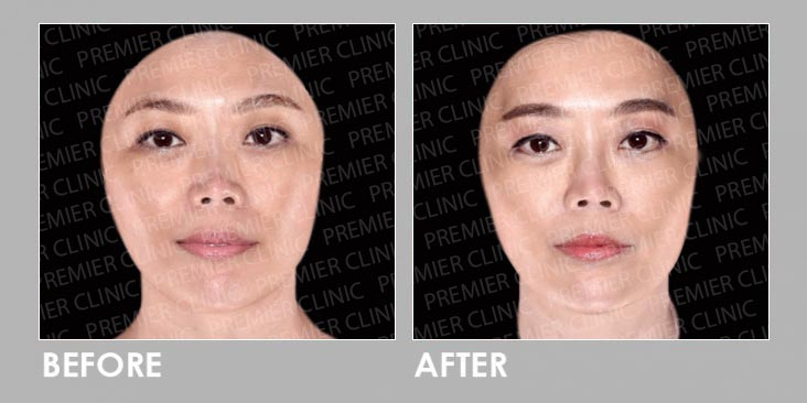 8cc Fillers Before & After
