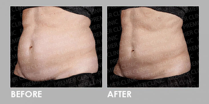 LipoFill Body Reshaping Before After