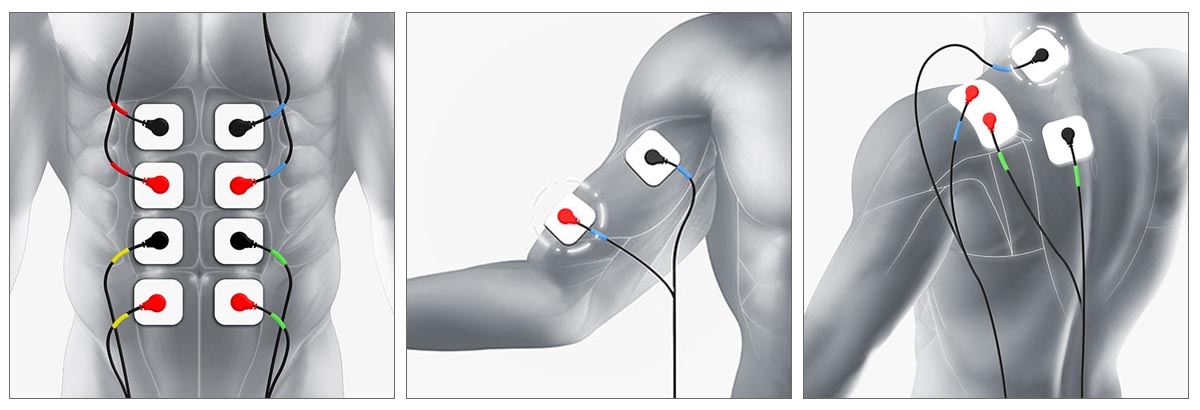 TRUSCULPT: THE ACE OF MUSCLE STIMULATOR THERAPY