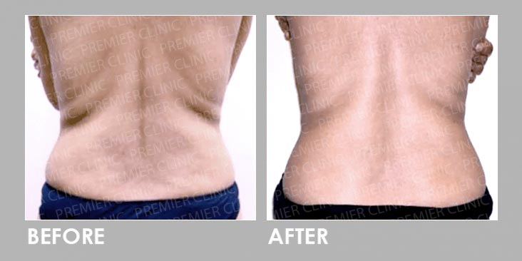 skin tightening & fat loss Before & After
