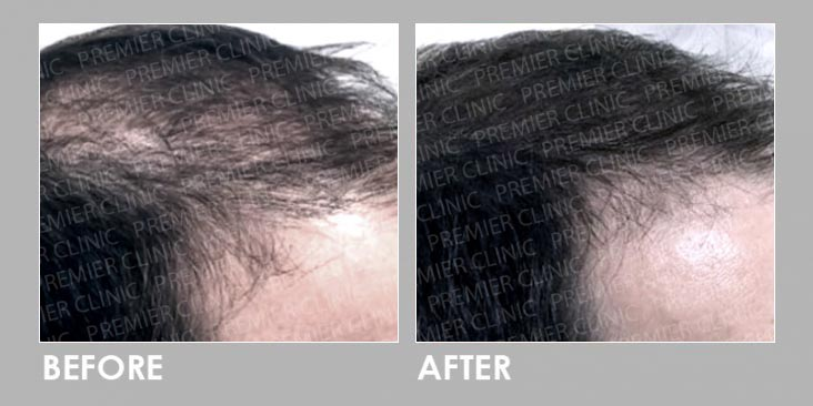 FUE Hair Transplant Before & After