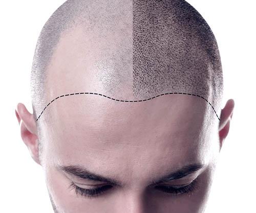 SureGrow Hair Transplant Promo
