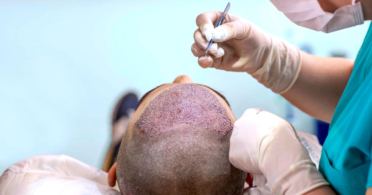 I did Hair Transplant For These 5 Benefits