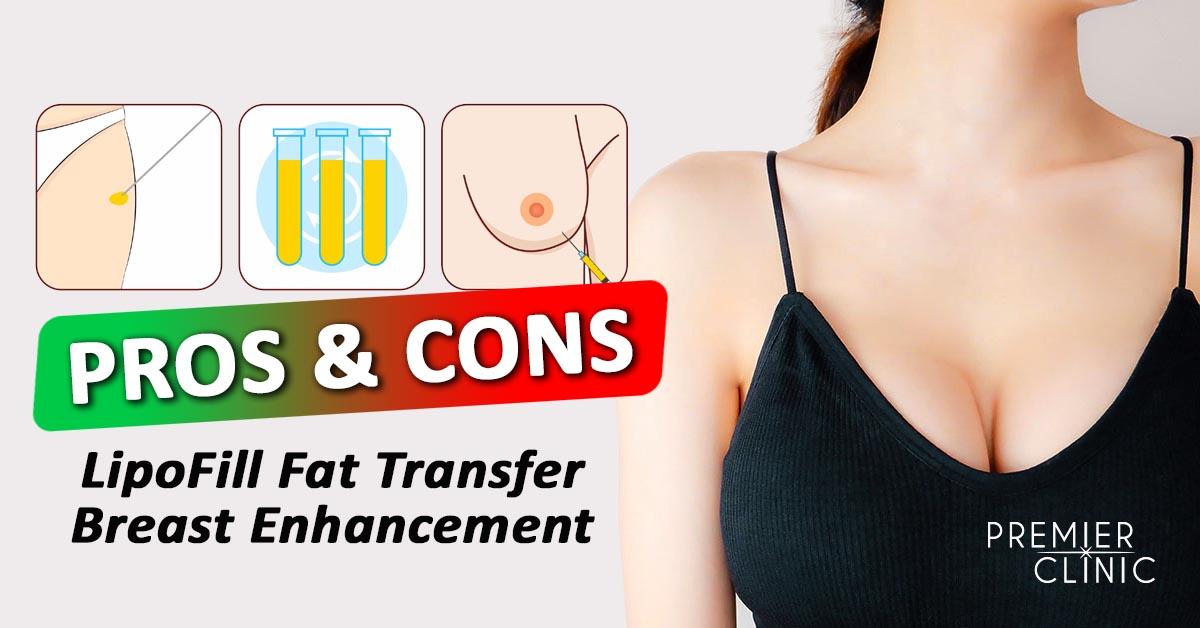 Pros & Cons of Lipofill Fat Transfer Breast Enhancement